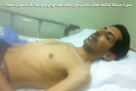 عبد الهادي الخواجة في الأيام الأخيرة من إضرابه الأول عن الطعام