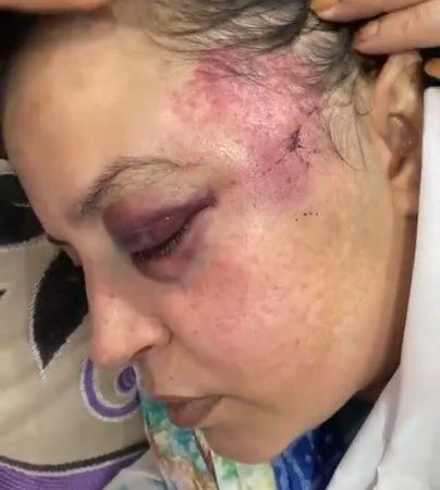 Gros plan sur le visage de profil de Soltana, dont le visage tuméfié présente de gros hématomes au niveau de l'œil et de la tempe gauches.